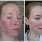 """""""Do My Eyes Look Smaller?"""" And Other Things I Never Thought I'd Ask on Roaccutane – Week 8 Update"""