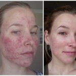 Roaccutane You Beauty – Week 14 Update