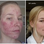 Roaccutane Progress – 20 Weeks (Just Over Half Way)