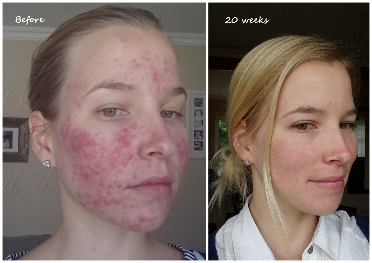 Accutane | Worth It? Reviews, Cost, Pictures - RealSelf