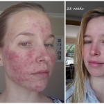 My Roaccutane Journey – The End Result
