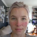 SKIN UPDATE – This Is A Constant Journey Of Discovery